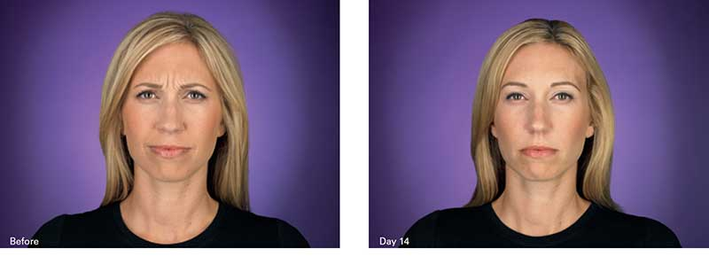 Botox NYC Before & After