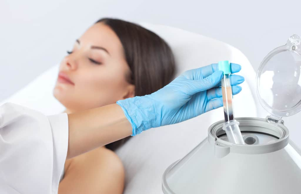PRP Injections NYC